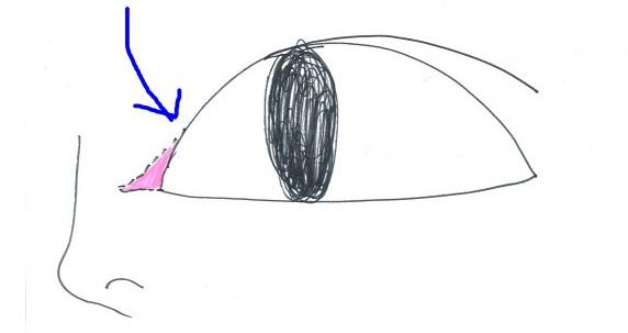 目頭切開を説明する画像