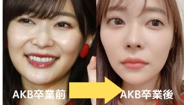 2019年AKB卒業前→卒業後の指原莉乃の顔変化