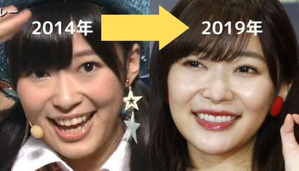 2014年→2019年の指原莉乃の顔変化