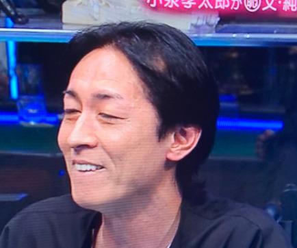 矢部浩之のハゲが円形脱毛症っぽい画像