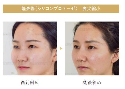眉間プロテーゼの症例