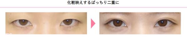 目頭切開の整形の症例