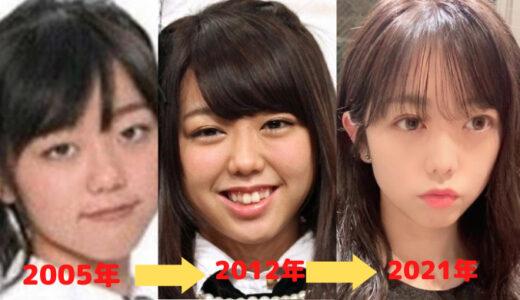 峯岸みなみの顔が変わった!整形は鼻と目?デビューから現在の画像で比較!
